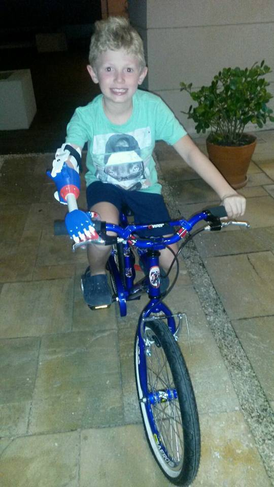 Leo, riding a bike after receiving the prosthesis